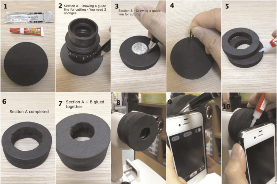 Diy Smartphone Slit Lamp Adaptor Journal Of Mobile Technology In
