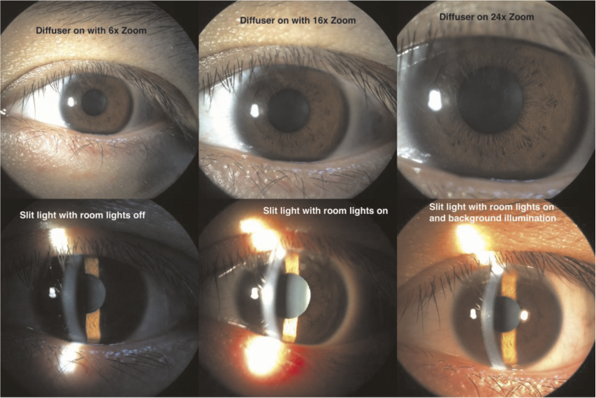 Amazing Figure 6: Different Lighting And Zooming Of Anterior Segment Pictures